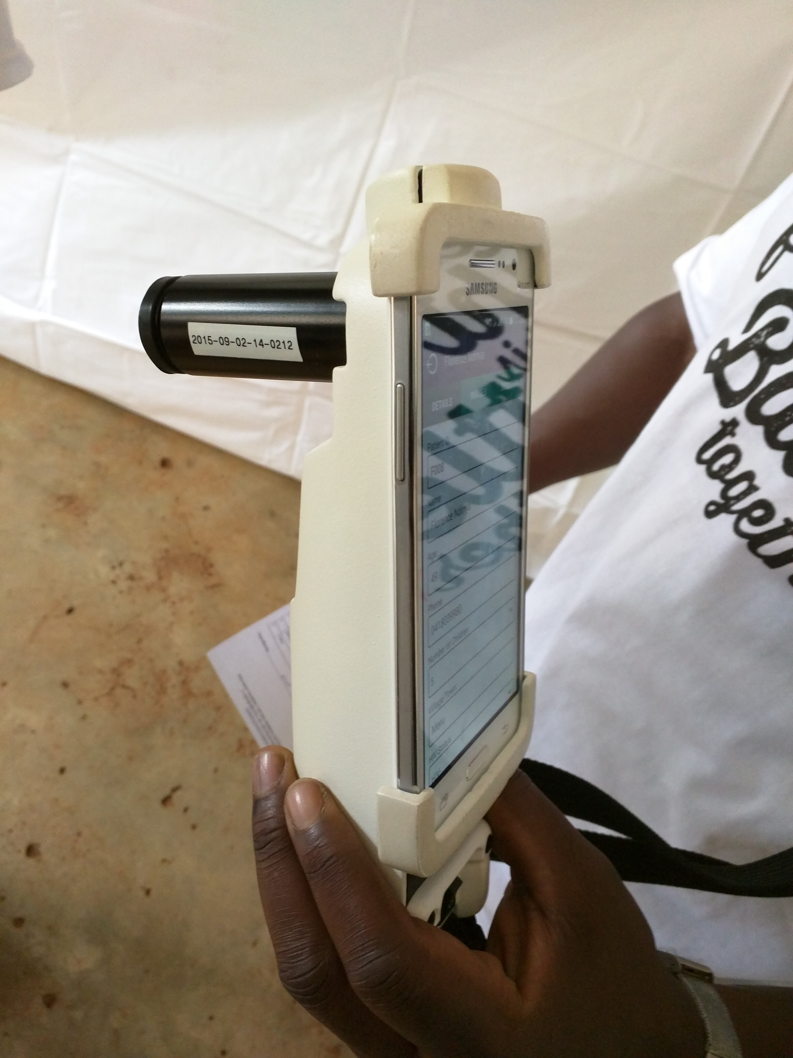 Mobile ODT (Offline Data Transfer) Device is a smartphone-enabled medical device that is used to detect Cervical Cancer.